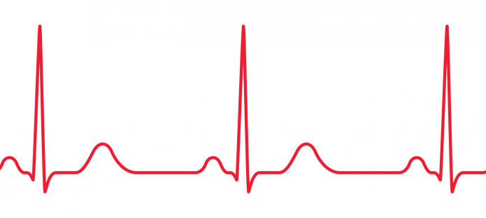 A red ECG on a white background